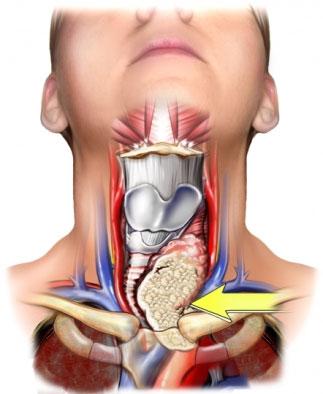 Thyroid Cancer Treatment Varies by Hospital