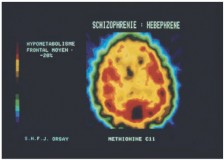 U. N. And Marijuana Where Is The Science? | Justmytruth's ...