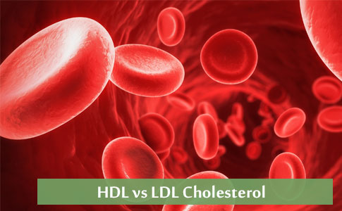 High Blood cholesterol - Overview, Causes