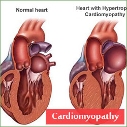 The Cardiomyopathies