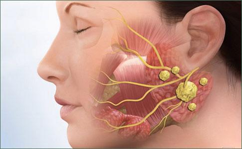 human papillomavirus parotid gland)